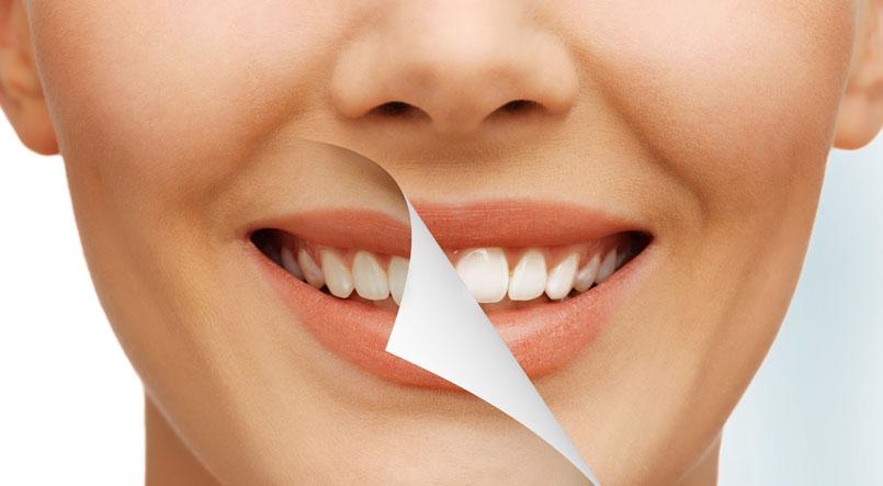 blanqueamientos dentales