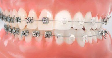 clínica dentales de confianza